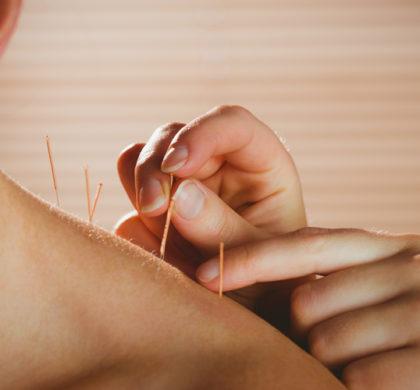 A acupuntura e o período de tratamento